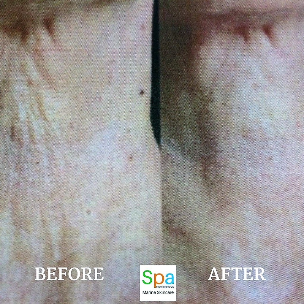 before and after 90 days of use Spa Technologies UK Marine Night Repair with cellular DNA repairing enzymes